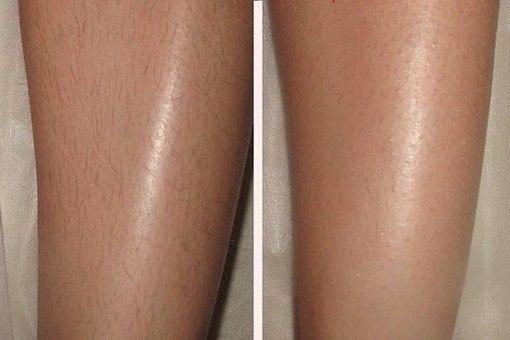 лазерная эпиляция ног