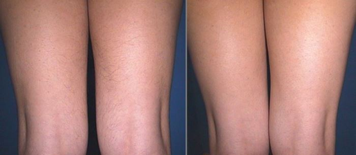 до и после лазерная эпиляция ног