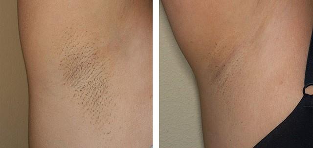 до и после лазерная эпиляция подмышек