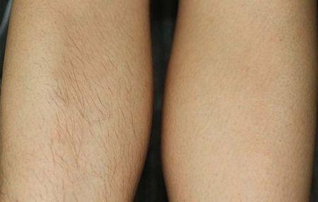 до и после лазерная эпиляция рук